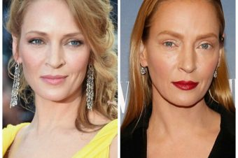 Oh oh What has Uma Thurman done to her face ?